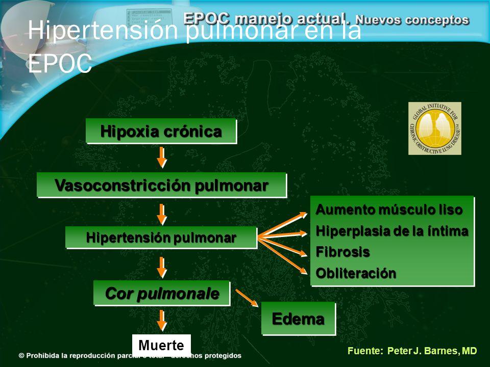 Hipoxia crónica Fuente: Peter J. Barnes, MD Hipertensión pulmonar en la EPOC Vasoconstricción pulmonar Aumento músculo liso Hiperplasia de la íntima F