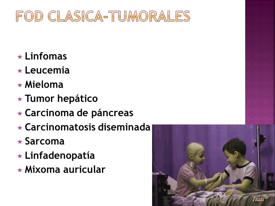 Linfomas Leucemia Mieloma Tumor hepático Carcinoma de páncreas Carcinomatosis diseminada Sarcoma Linfadenopatía Mixoma auricular Isais ®