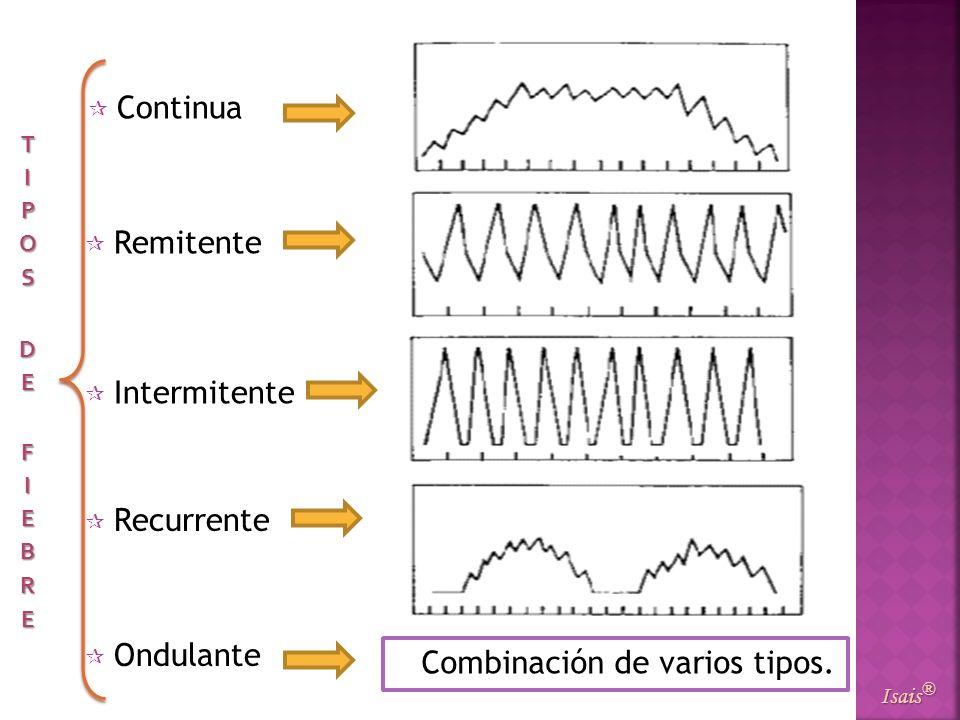 Continua Isais ® Remitente Intermitente Recurrente Ondulante Combinación de varios tipos.