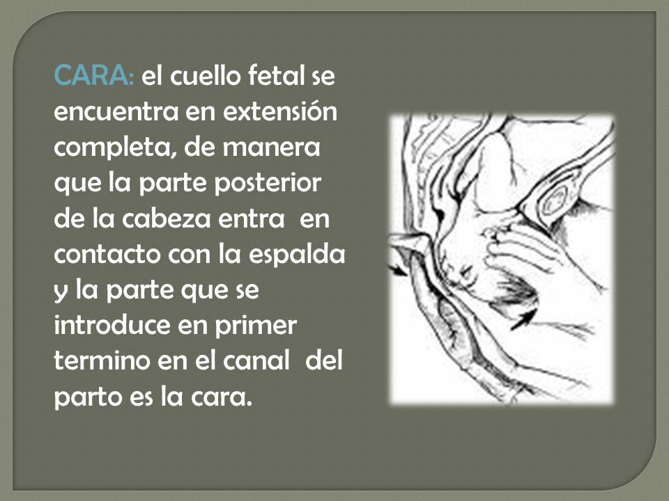 CARA: el cuello fetal se encuentra en extensión completa, de manera que la parte posterior de la cabeza entra en contacto con la espalda y la parte qu