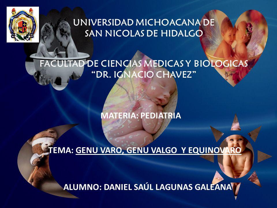 UNIVERSIDAD MICHOACANA DE SAN NICOLAS DE HIDALGO FACULTAD DE CIENCIAS MEDICAS Y BIOLOGICAS DR. IGNACIO CHAVEZ MATERIA: PEDIATRIA TEMA: GENU VARO, GENU