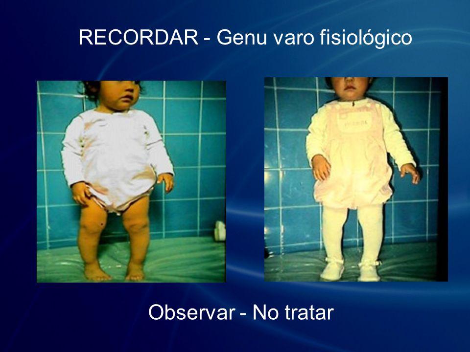 RECORDAR - Genu varo fisiológico Observar - No tratar