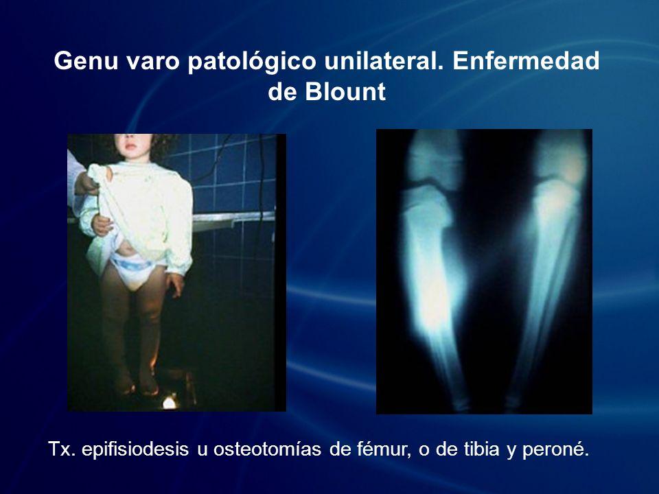 Genu varo patológico bilateral.Raquitismo hipofosfatémico Tx.