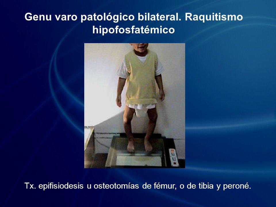 Genu varo patológico bilateral. Raquitismo hipofosfatémico Tx. epifisiodesis u osteotomías de fémur, o de tibia y peroné.