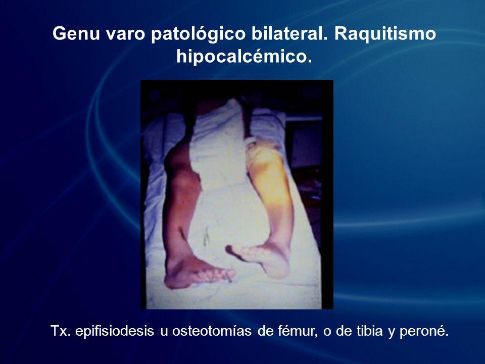 Genu varo patológico bilateral. Raquitismo hipocalcémico. Tx. epifisiodesis u osteotomías de fémur, o de tibia y peroné.