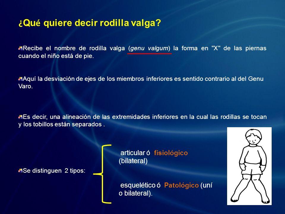 Genu Valgo Articular o fisiológico: Entre los 3 y los 7 años existe un genu valgo considerado como fisiológico, que no debe ser > 6 cm de separación intermaleolar.