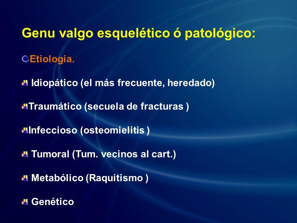 Genu valgo esquelético ó patológico: Etiologia. Idiopático (el más frecuente, heredado) Traumático (secuela de fracturas ) Infeccioso (osteomielitis )