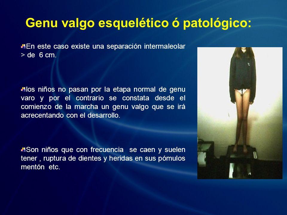 En este caso existe una separación intermaleolar > de 6 cm. los niños no pasan por la etapa normal de genu varo y por el contrario se constata desde e