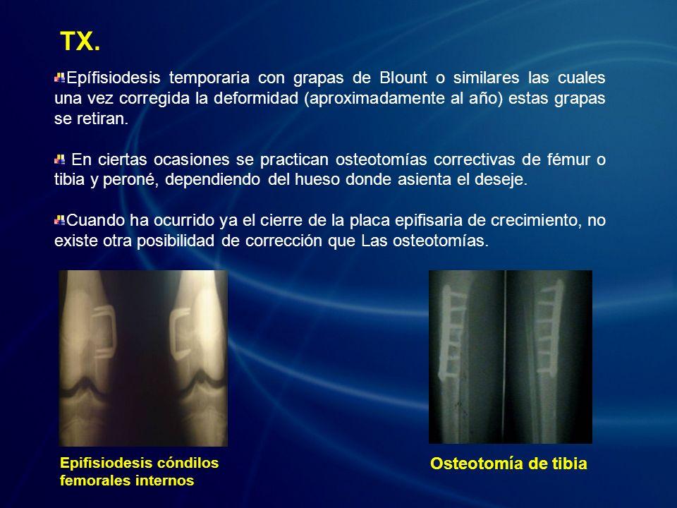 Epífisiodesis temporaria con grapas de Blount o similares las cuales una vez corregida la deformidad (aproximadamente al año) estas grapas se retiran.