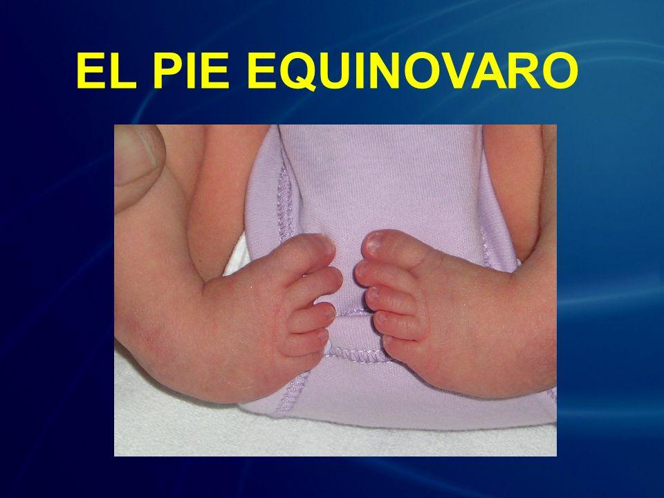 El pie equinovaro, o talipes equinovarus (TEV) es un defecto de nacimiento, en el que el pie se encuentra torcido o invertido y hacia adentro.