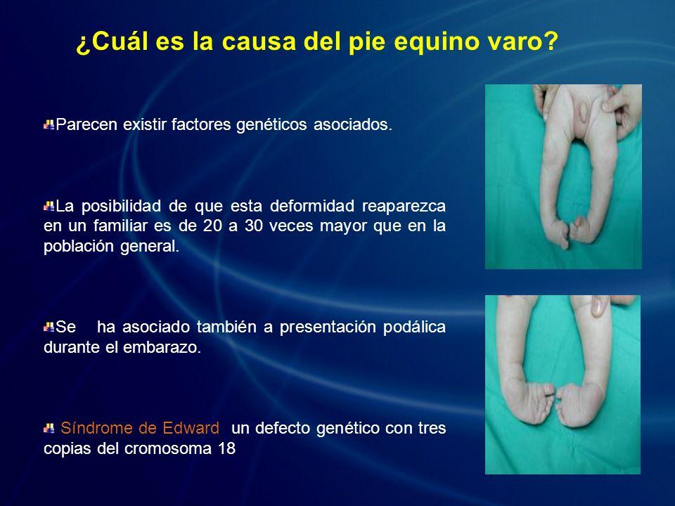 ¿Cuál es la causa del pie equino varo? Parecen existir factores genéticos asociados. La posibilidad de que esta deformidad reaparezca en un familiar e