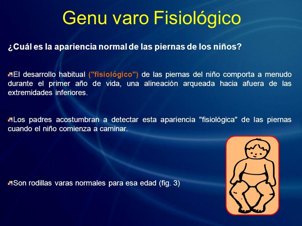 ¿Cuál es la apariencia normal de las piernas de los niños? El desarrollo habitual (