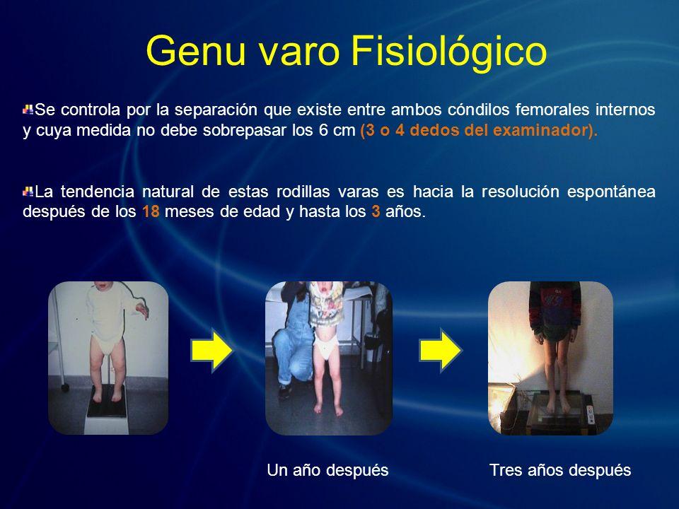 Se controla por la separación que existe entre ambos cóndilos femorales internos y cuya medida no debe sobrepasar los 6 cm (3 o 4 dedos del examinador