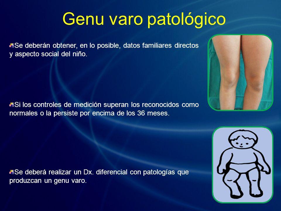 El raquitismo carencial de vitamina D.El raquitismo hipofosfatémico (Síndrome de Fanconi).