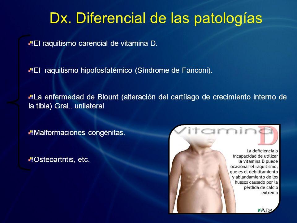 El raquitismo carencial de vitamina D. El raquitismo hipofosfatémico (Síndrome de Fanconi). La enfermedad de Blount (alteración del cartílago de creci