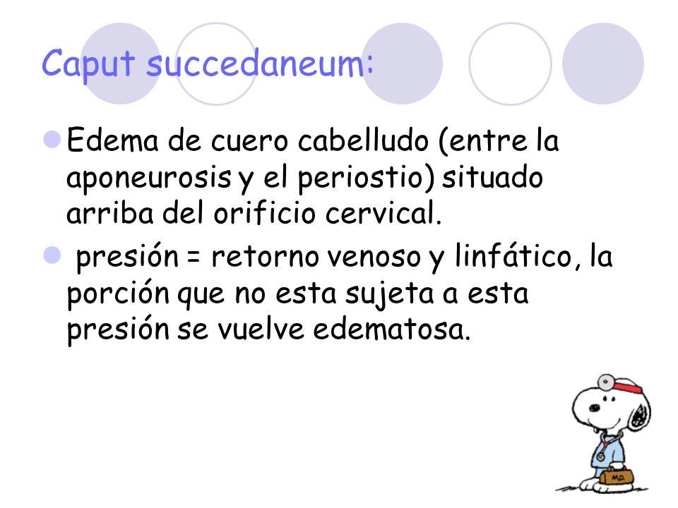 Caput succedaneum: Edema de cuero cabelludo (entre la aponeurosis y el periostio) situado arriba del orificio cervical. presión = retorno venoso y lin