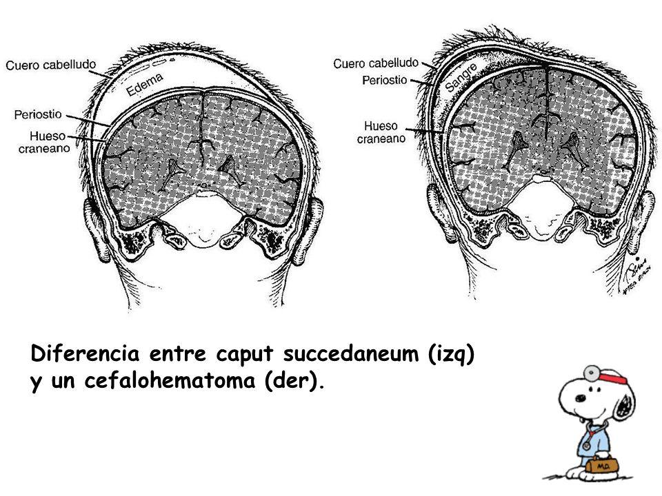 Diferencia entre caput succedaneum (izq) y un cefalohematoma (der).