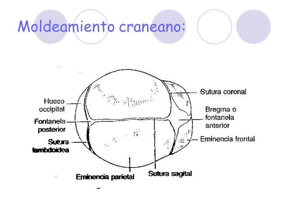 Dxs diferenciales: Cefalohematoma. Hematoma subgaleal (subaponeurotica). Hemorragia intracraneana.
