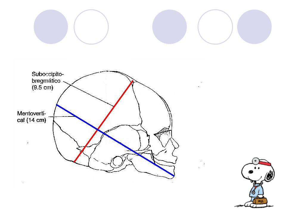 Cefalohematoma: Lesión periostio craneano.
