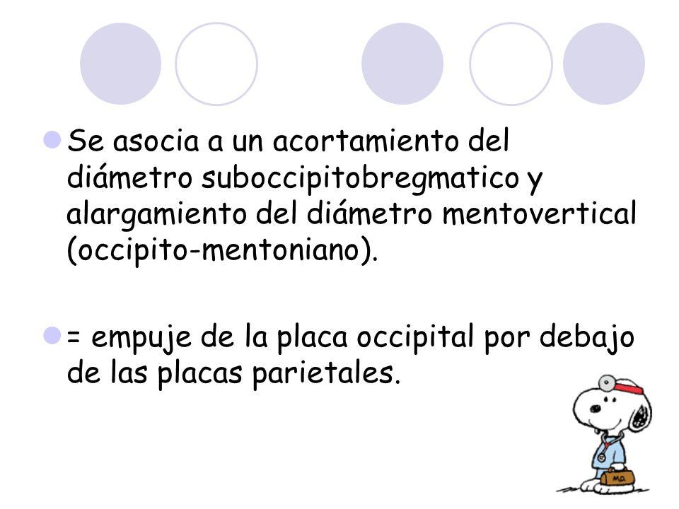 Se asocia a un acortamiento del diámetro suboccipitobregmatico y alargamiento del diámetro mentovertical (occipito-mentoniano). = empuje de la placa o