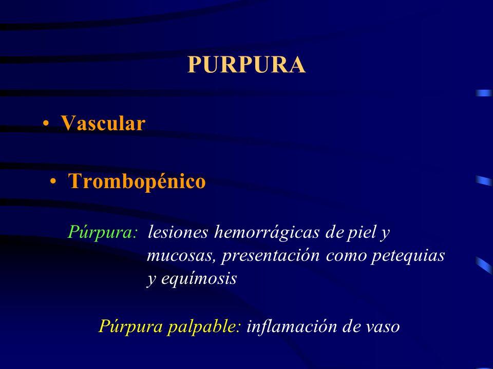 PURPURA Vascular Trombopénico Púrpura:lesiones hemorrágicas de piel y mucosas, presentación como petequias y equímosis Púrpura palpable:inflamación de vaso