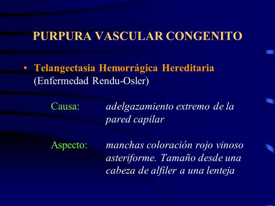 PURPURA VASCULAR CONGENITO Telangectasia Hemorrágica Hereditaria (Enfermedad Rendu-Osler) Causa:adelgazamiento extremo de la pared capilar Aspecto:manchas coloración rojo vinoso asteriforme.