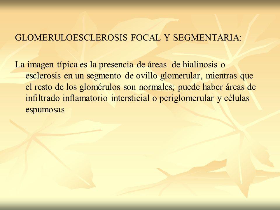GLOMERULOESCLEROSIS FOCAL Y SEGMENTARIA: La imagen típica es la presencia de áreas de hialinosis o esclerosis en un segmento de ovillo glomerular, mie