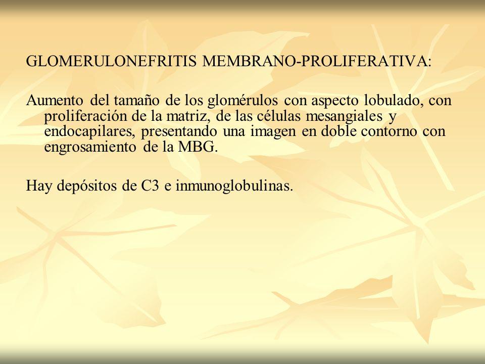 GLOMERULONEFRITIS MEMBRANO-PROLIFERATIVA: Aumento del tamaño de los glomérulos con aspecto lobulado, con proliferación de la matriz, de las células me