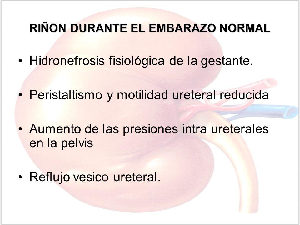 RIÑON DURANTE EL EMBARAZO NORMAL Hidronefrosis fisiológica de la gestante. Peristaltismo y motilidad ureteral reducida Aumento de las presiones intra