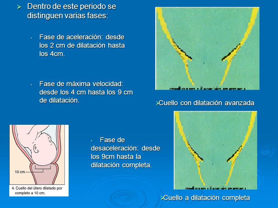 Dentro de este periodo se distinguen varias fases: Dentro de este periodo se distinguen varias fases: Fase de aceleración: desde los 2 cm de dilatación hasta los 4cm.