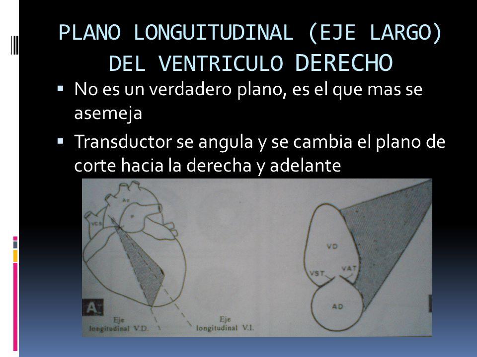 PLANO LONGUITUDINAL (EJE LARGO) DEL VENTRICULO DERECHO No es un verdadero plano, es el que mas se asemeja Transductor se angula y se cambia el plano d