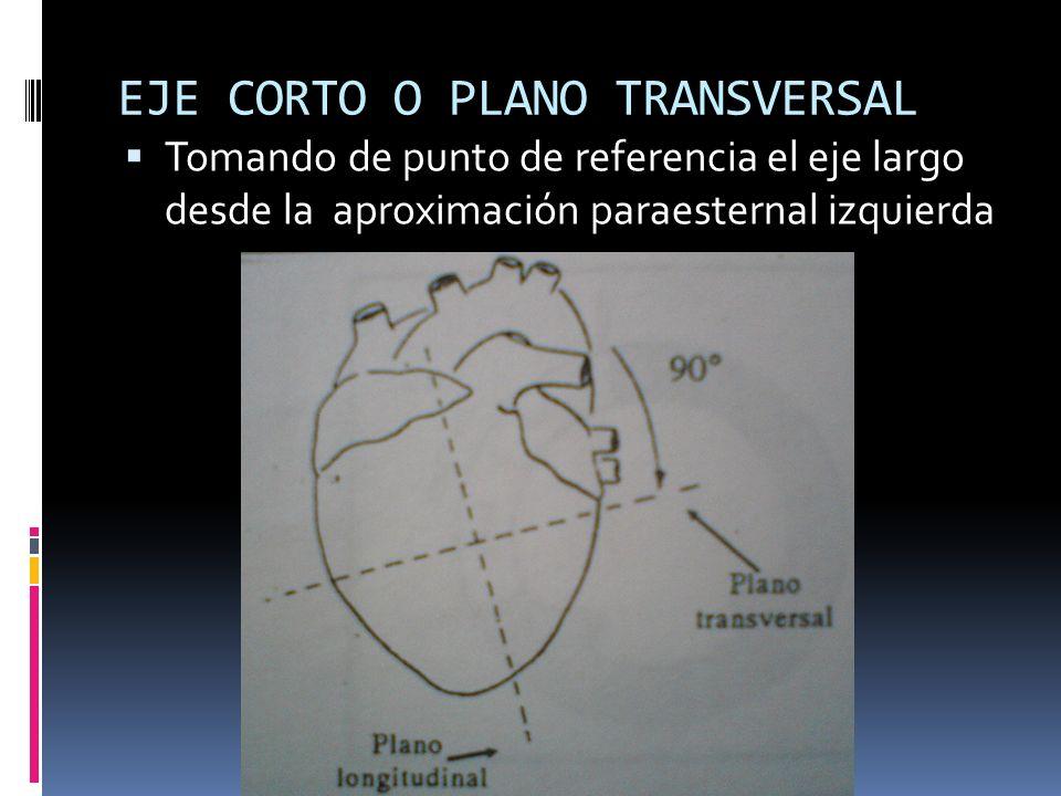 EJE CORTO O PLANO TRANSVERSAL Tomando de punto de referencia el eje largo desde la aproximación paraesternal izquierda