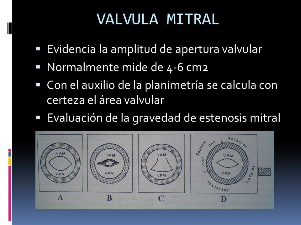 VALVULA MITRAL Evidencia la amplitud de apertura valvular Normalmente mide de 4-6 cm2 Con el auxilio de la planimetría se calcula con certeza el área