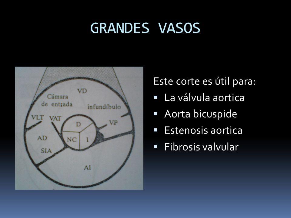 GRANDES VASOS Este corte es útil para: La válvula aortica Aorta bicuspide Estenosis aortica Fibrosis valvular