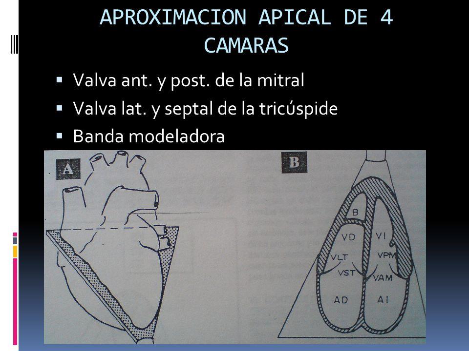 APROXIMACION APICAL DE 4 CAMARAS Valva ant. y post. de la mitral Valva lat. y septal de la tricúspide Banda modeladora