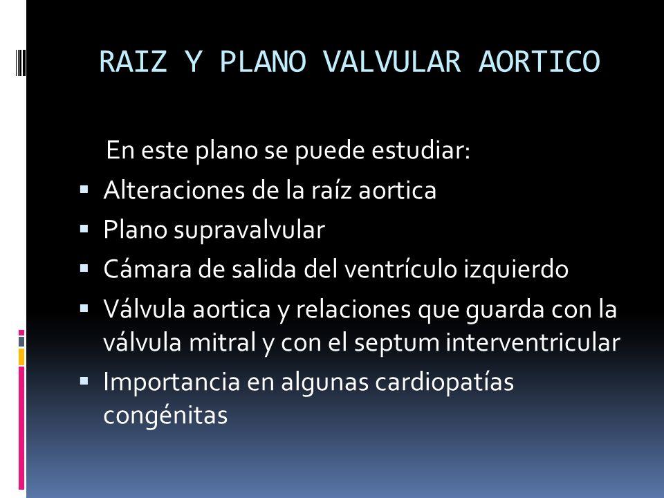 RAIZ Y PLANO VALVULAR AORTICO En este plano se puede estudiar: Alteraciones de la raíz aortica Plano supravalvular Cámara de salida del ventrículo izq