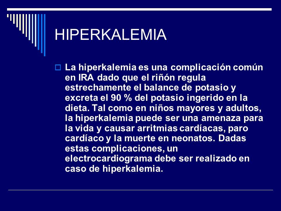 HIPERKALEMIA La hiperkalemia es una complicación común en IRA dado que el riñón regula estrechamente el balance de potasio y excreta el 90 % del potas