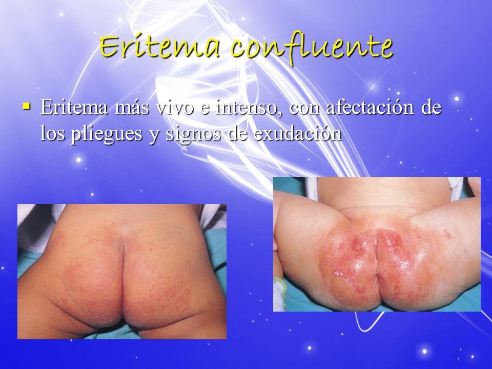 Eritema confluente Eritema más vivo e intenso, con afectación de los pliegues y signos de exudación Eritema más vivo e intenso, con afectación de los