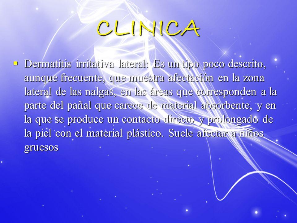 CLINICA Dermatitis irritativa lateral: Es un tipo poco descrito, aunque frecuente, que muestra afectación en la zona lateral de las nalgas, en las áre