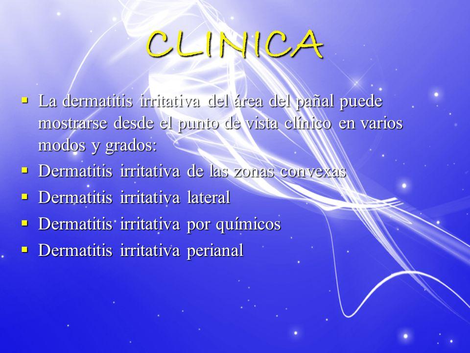 CLINICA Dermatitis irritativa de las zonas convexas: Aparición de lesiones cutáneas en las áreas que tienen un contacto más directo con el pañal, como son los genitales externos, las nalgas y las zonas perineales.
