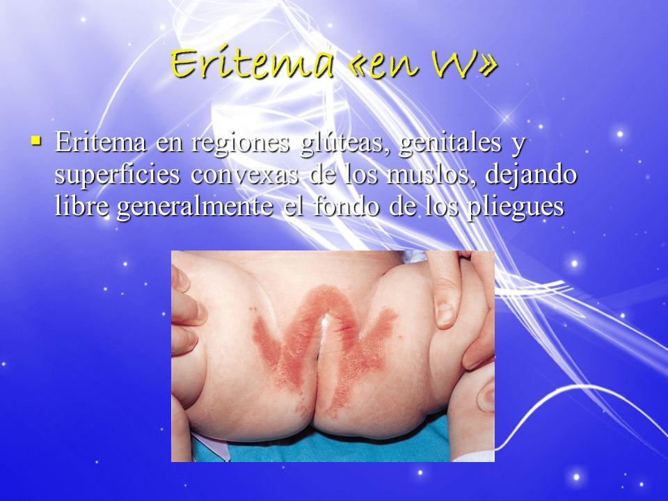 Eritema «en W» Eritema en regiones glúteas, genitales y superficies convexas de los muslos, dejando libre generalmente el fondo de los pliegues Eritem