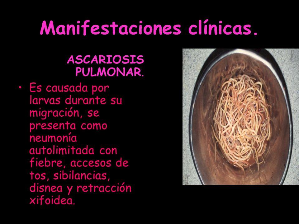 Manifestaciones clínicas. ASCARIOSIS PULMONAR. Es causada por larvas durante su migración, se presenta como neumonía autolimitada con fiebre, accesos