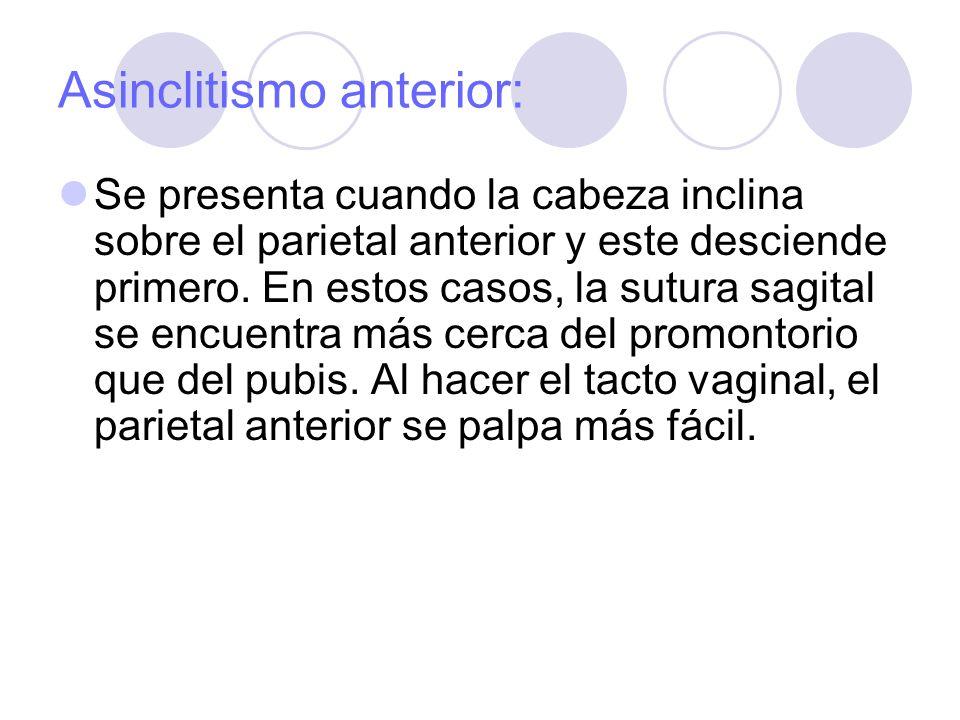 Asinclitismo anterior: Se presenta cuando la cabeza inclina sobre el parietal anterior y este desciende primero. En estos casos, la sutura sagital se