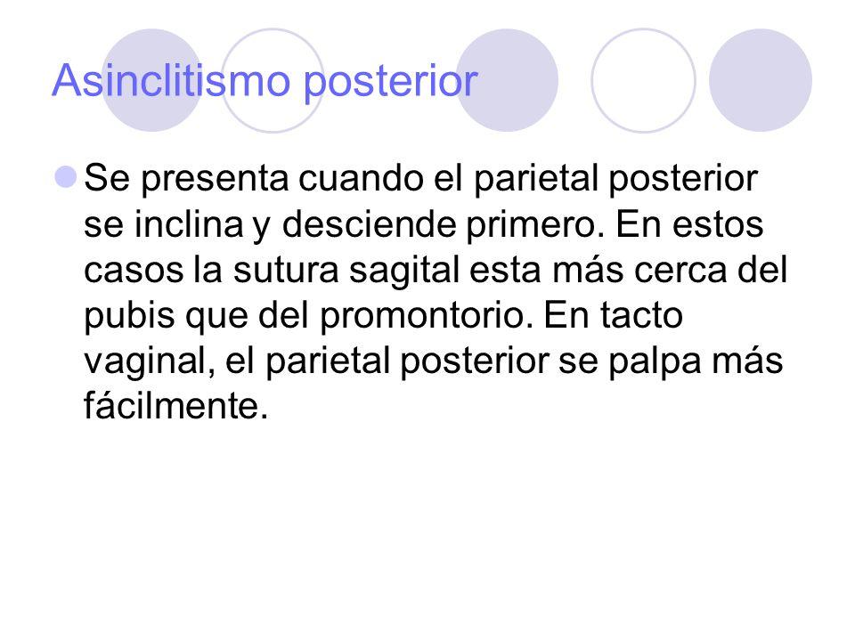 Asinclitismo posterior Se presenta cuando el parietal posterior se inclina y desciende primero. En estos casos la sutura sagital esta más cerca del pu