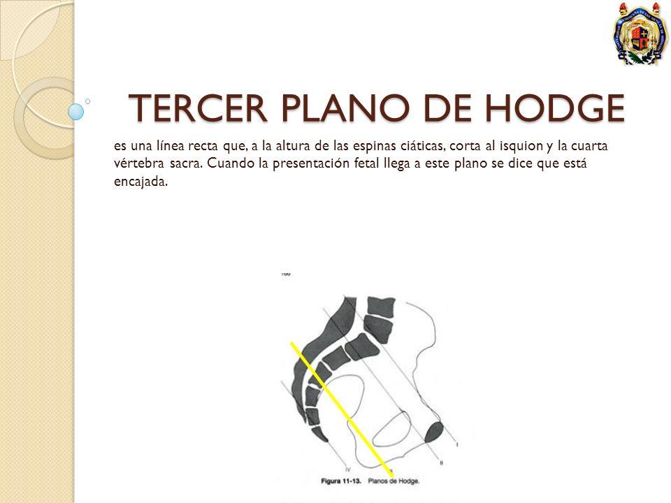TERCER PLANO DE HODGE es una línea recta que, a la altura de las espinas ciáticas, corta al isquion y la cuarta vértebra sacra. Cuando la presentación