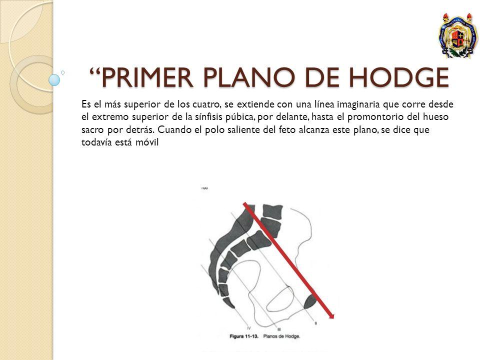 PRIMER PLANO DE HODGE Es el más superior de los cuatro, se extiende con una línea imaginaria que corre desde el extremo superior de la sínfisis púbica
