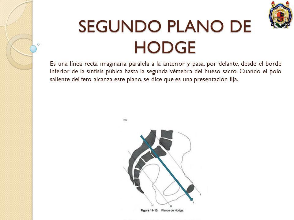 SEGUNDO PLANO DE HODGE Es una línea recta imaginaria paralela a la anterior y pasa, por delante, desde el borde inferior de la sínfisis púbica hasta l