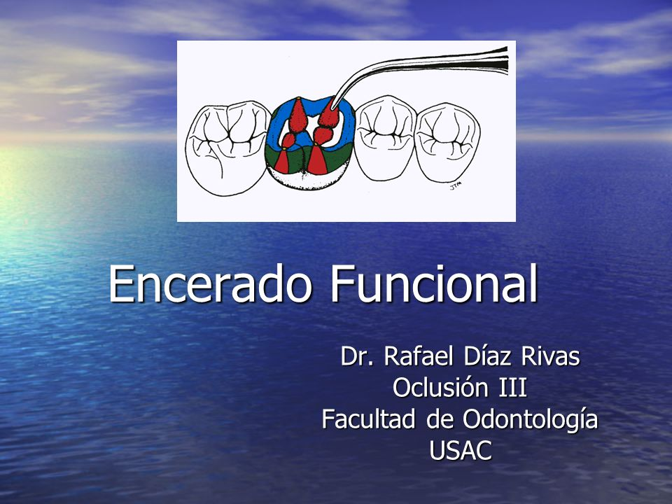 Encerado Funcional Dr. Rafael Díaz Rivas Oclusión III Facultad de Odontología USAC