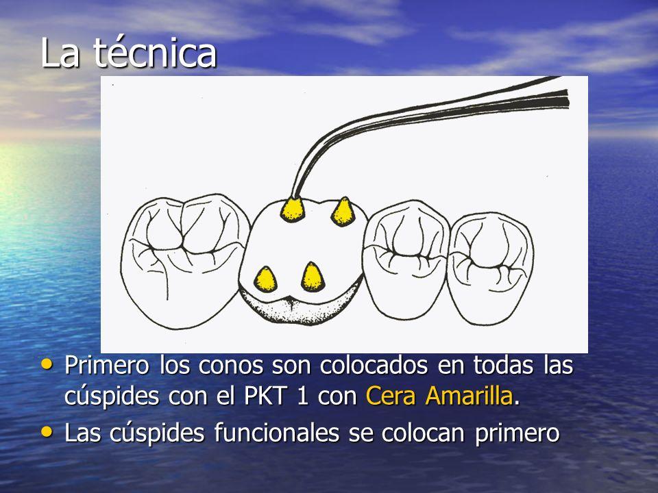 La técnica Primero los conos son colocados en todas las cúspides con el PKT 1 con Cera Amarilla. Primero los conos son colocados en todas las cúspides