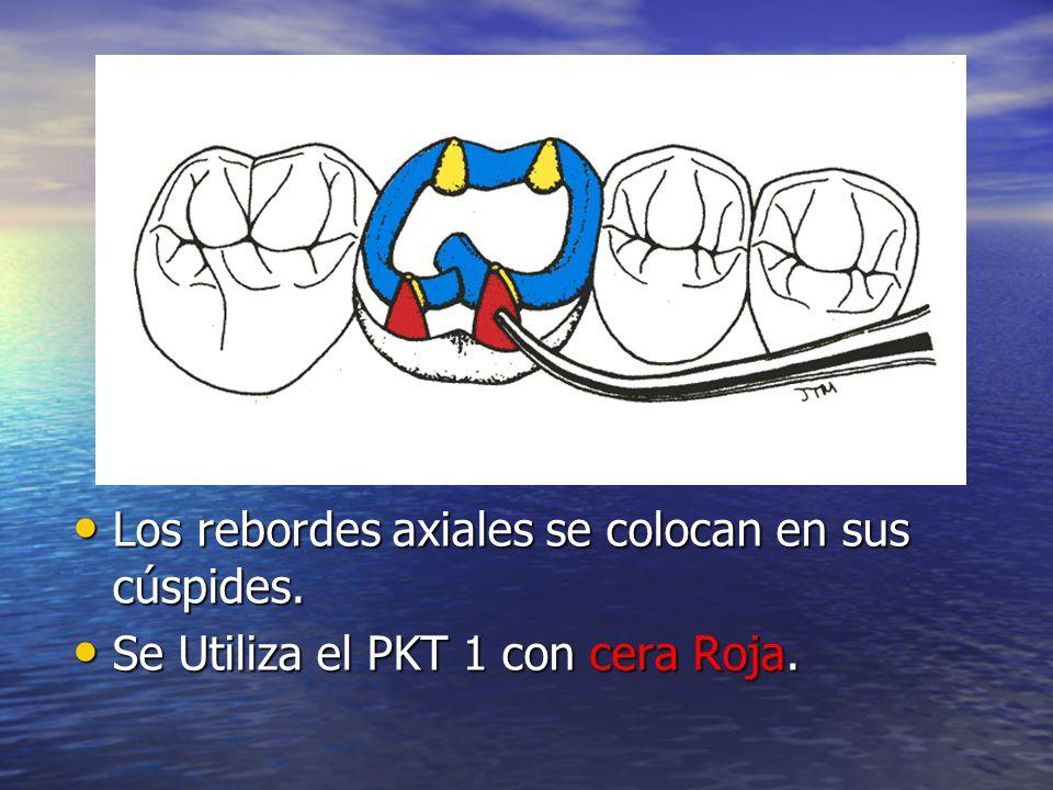 Los rebordes axiales se colocan en sus cúspides. Los rebordes axiales se colocan en sus cúspides. Se Utiliza el PKT 1 con cera Roja. Se Utiliza el PKT